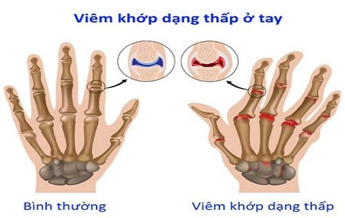 thao-duoc-teresa-herbs-viem-khop-dang-thap-o-tay