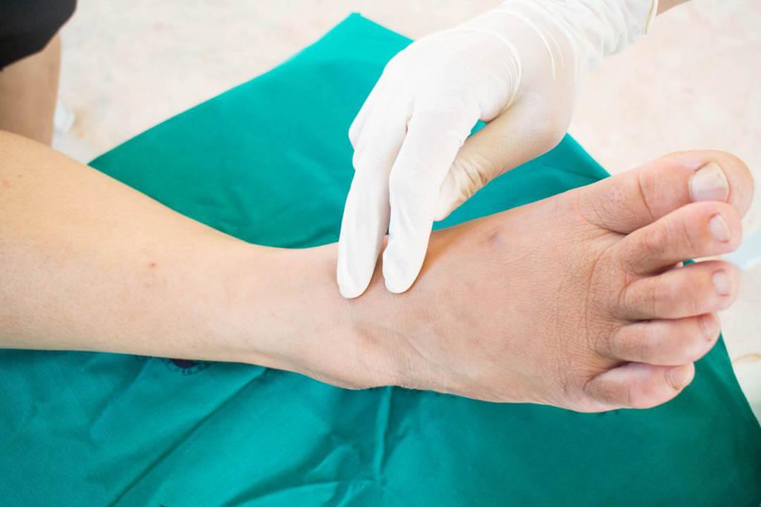 Phòng ngừa biến chứng về thần kinh do tiểu đường bằng cách kiểm tra chân mỗi ngày