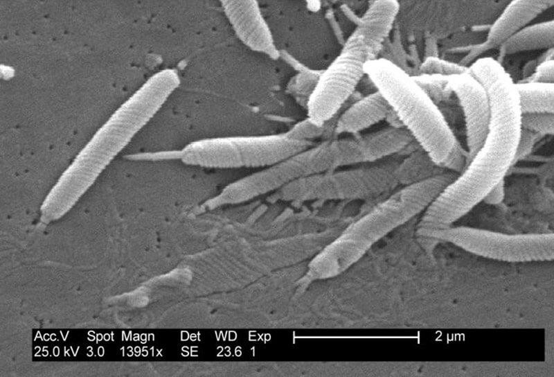Vi khuẩn H.pylori là nguyên nhân hàng đầu gây ung thư dạ dày