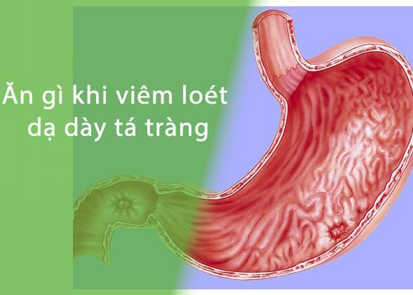 Ăn gì khi bị loét dạ dày tá tràng